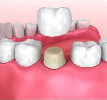 Dental Crowns in Saffron Walden